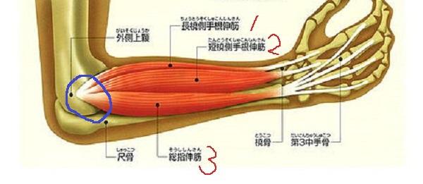 テニス肘 伸筋2.jpg