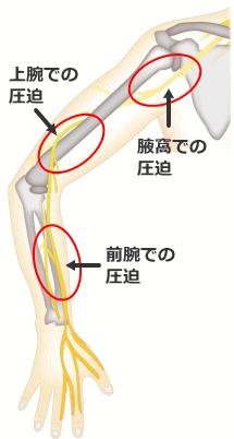 橈骨神経.png
