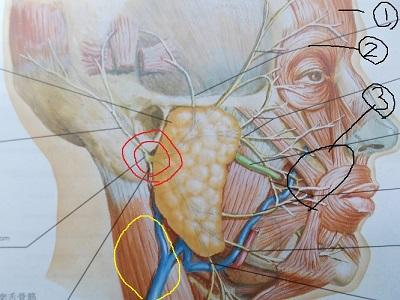 顔面神経麻痺3.jpg
